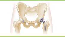 Hip Replament Surgery Hospital India