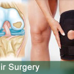 Knee-cartilage-repair