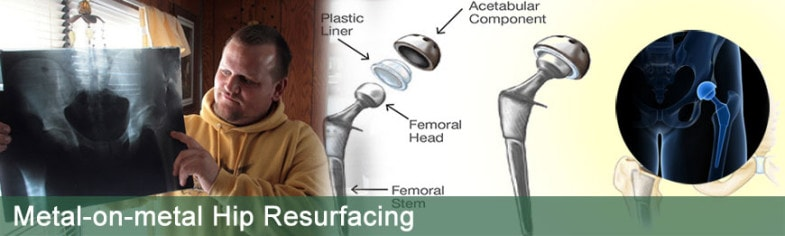 Metal-on-metal-hip-resurfacing
