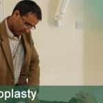 arthroscopic-acromioplasty
