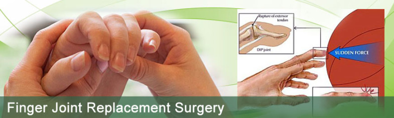 finger-joint-replacement