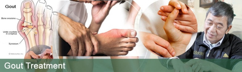gout therapy youtube natural remedies uric acid significance of uric acid in human body