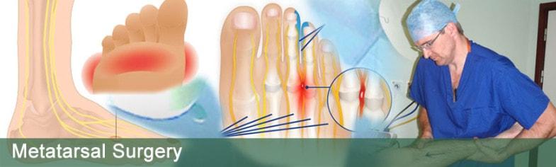 metatarsal-surgery