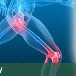oxford-knee