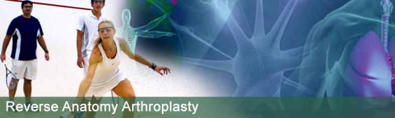 reverse-anatomy-arthroplasty