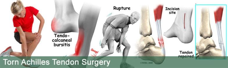 torn-achilles-tendon