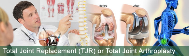 total-joint-replacement-(TJR)