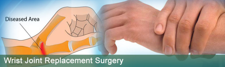 wrist-joint-replacement