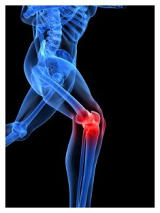 Best Joint Replacement Surgery India