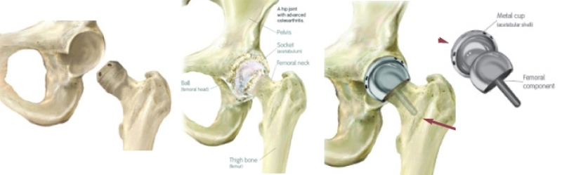 hip resurfacing2