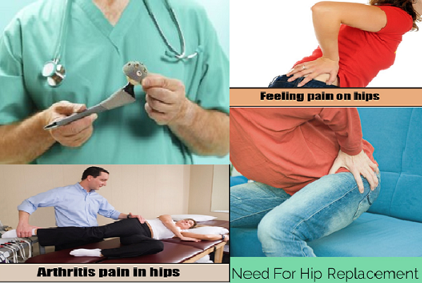 when-should-have-hip-replacement
