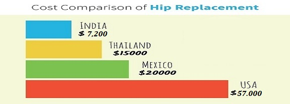 cost comparison at Joint Replacement Surgery Hospital India