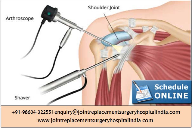 shoulder arthroscopy surgery