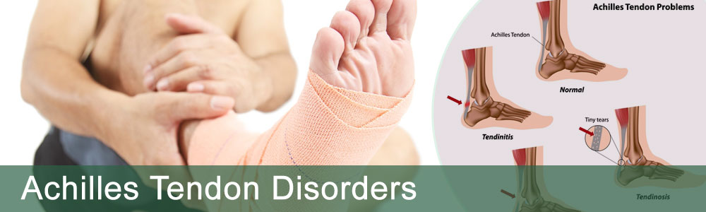 achilles-tendon-disorders
