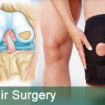 Knee-cartilage-repair