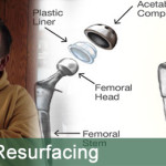 Metal-on-metal-hip-resurfacing