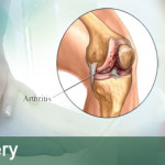 ankle-arthritis