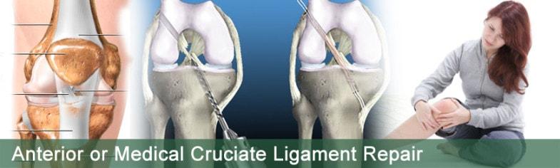 anterior-medial-cruciate-ligament-repair