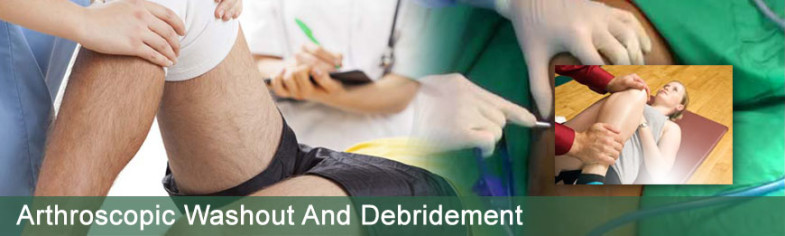 arthroscopic-washout-debridement