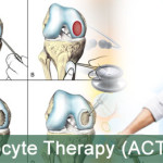 autologous-chondrocyte-therapy