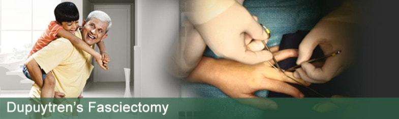 dupuytrens-fasciectomy