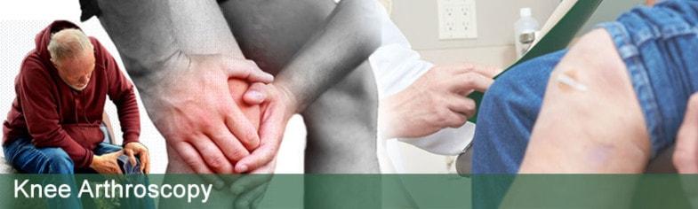 knee-arthroscopy