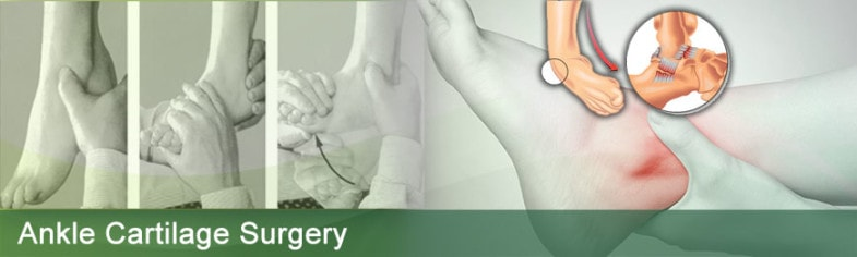Low Cost Ankle Cartilage Surgery India