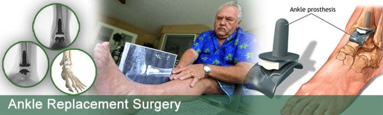 Low Cost Ankle Replacement In India