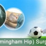 hip resurfacing surgery in india