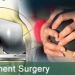 Low Cost Total Knee Replacement Surgery in India