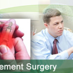 thumb-joint-replacement