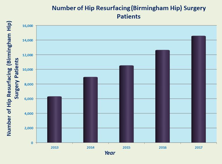 Low Cost Hip Resurfacing Birmingham