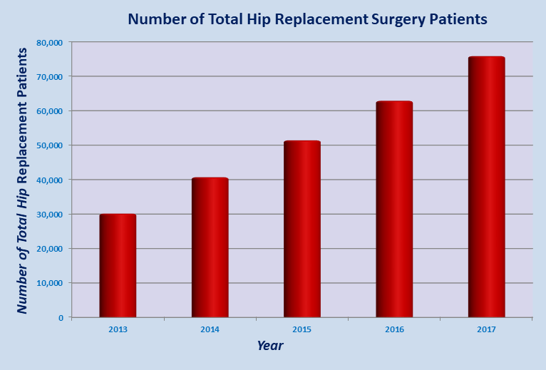 Low Cost Total Hip Replacement Surgery India